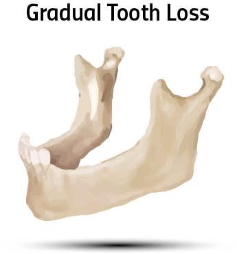 Without Stimulation From the Teeth, Bone Loss Begins