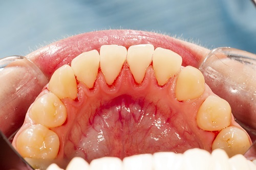Teeth-and-irritated-gums-close-up-gum-disease