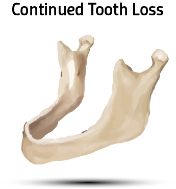 Bone Loss Continues to Progress, Wearing a Denture is Uncomfortable and Unstable