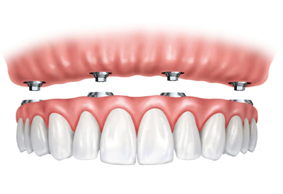 PDM_Ball-Retained-Dentures