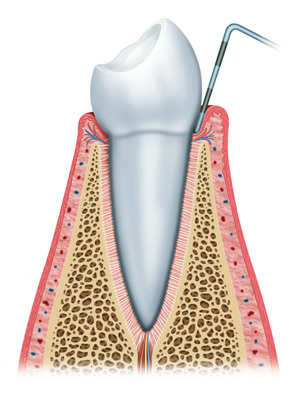 PDM_Healthy-Teeth