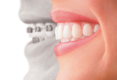 PDM_Invisalign-Treatment-Difference